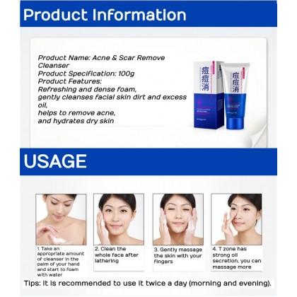 BIOAQUA 100% Original Anti-Acne Cleanser Remove Acne Without Scar Skin Silky Cleansing Ready Stock 7633BA